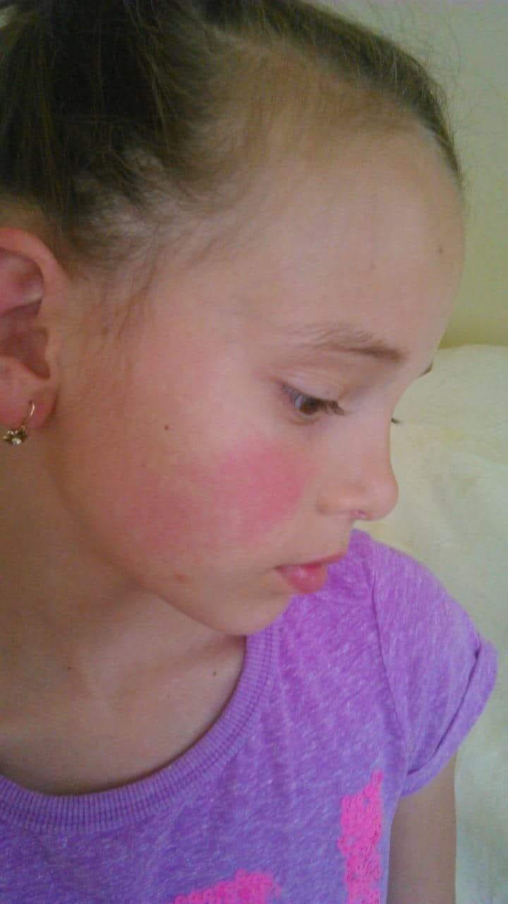 vörös folt az arcon hólyagokkal)